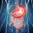 Stockfoto: Painful stomach