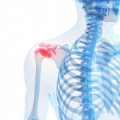 Painful shoulder — Foto de Stock