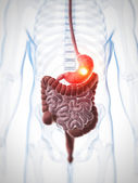 Painful stomach — Stockfoto