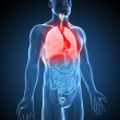 Illustration of inflamed lung — Stock Photo #26038957