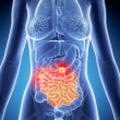 Intestine cancer — Stock Photo