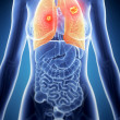 Lung cancer — Stock Photo #26039711