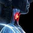 Thyroid cancer — Stock Photo