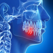 Stockfoto: Painful tooth