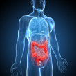 Illustration of an inflamed colon — Stock Photo