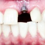 Dental implant — Stock Photo #23913507