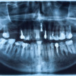 Dental X-Ray — Stock Photo