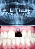 Implantu — Zdjęcie stockowe