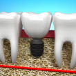 Tooth implant — Stock Photo