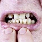 ������, ������: Yellow teeth studio shot
