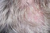 Dandruff and bald — Stock Photo