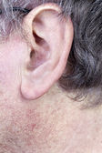 Hairy man ear — Stock Photo