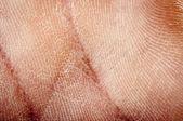 Human dried skin — Stock Photo