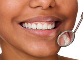 Healthy Woman Teeth — Stock Photo