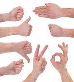 男性出现各种迹象的手的特写 — 图库照片