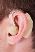 Hearing Aid On The Man's Ear — Stock Photo