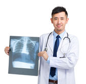 Mature doctor holding x-ray — 图库照片