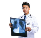 Male doctor hold x ray — Stock Photo