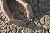 Legs lie on cracked land — Stock Photo