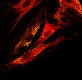 Fibroblasts (skin  cells) labeled with fluorescent dyes — ストック写真