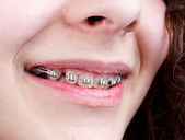 Woman with brackets  — Stock Photo