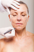 Senior woman preparing for plastic surgery — Stock Photo