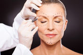 Middle aged woman preparing for plastic surgery — Stock Photo