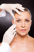 Doctor preparing middle aged woman for face lifting surgery — Stockfoto