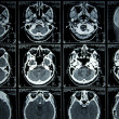 MRI Scan brain — Stock Photo