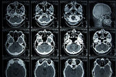 MRI Scan brain — Stock Photo