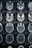 CT Scan brain — Stock Photo