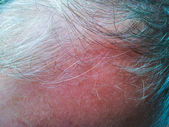Grey hair, balding — Stock Photo