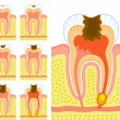 Stock Vector: Internal structure of tooth (decay and caries)