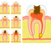 Internal structure of tooth (decay and caries) — Stock Vector