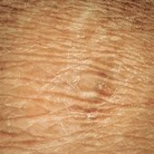 Dry skin texture — Stock Photo