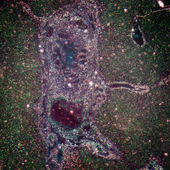 Micrograph of liver tissue — Stock Photo