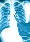 Showing x-ray picture lumbar vertebra — Stock Photo