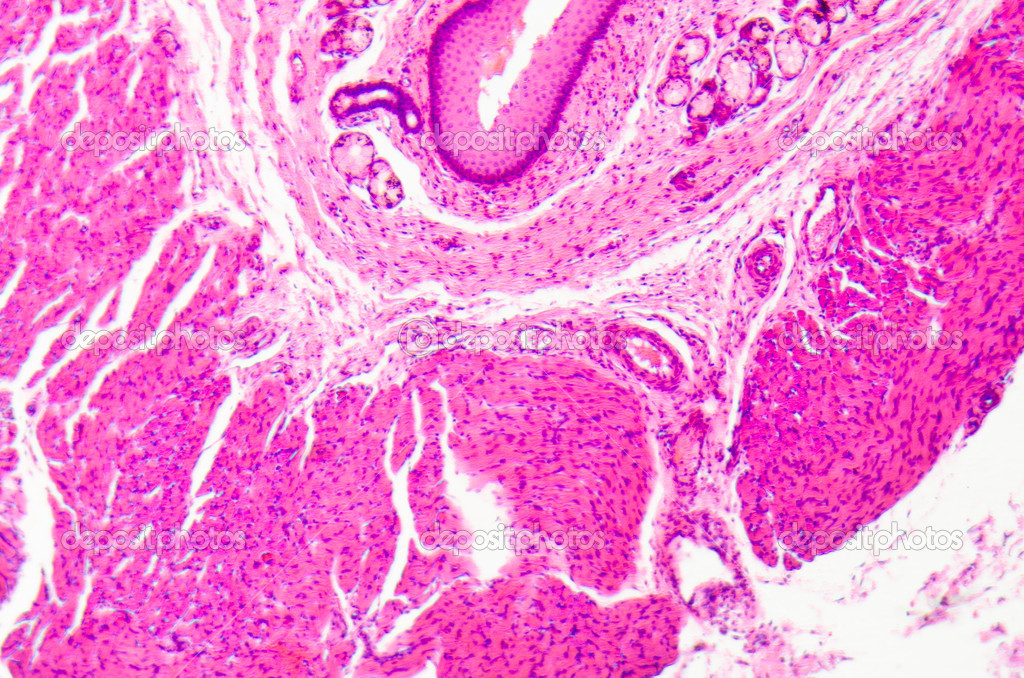 Micrograph of medical science stratified squamous epithelium tissue cell — Stock Photo #17671769