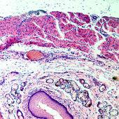 Epitélio escamoso estratificado — Foto Stock