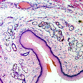 Geschichteten squamous epithel — Stockfoto