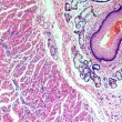 Stratified squamous epithelium — Stock Photo