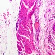 Stratified squamous epithelium - Foto Stock