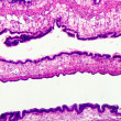 Cilliated epithelium tissue - 
