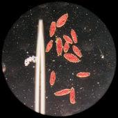 Animal conjugation of Paramecium caudatum — Stock Photo