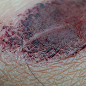Medical incrustation scab — Stock Photo