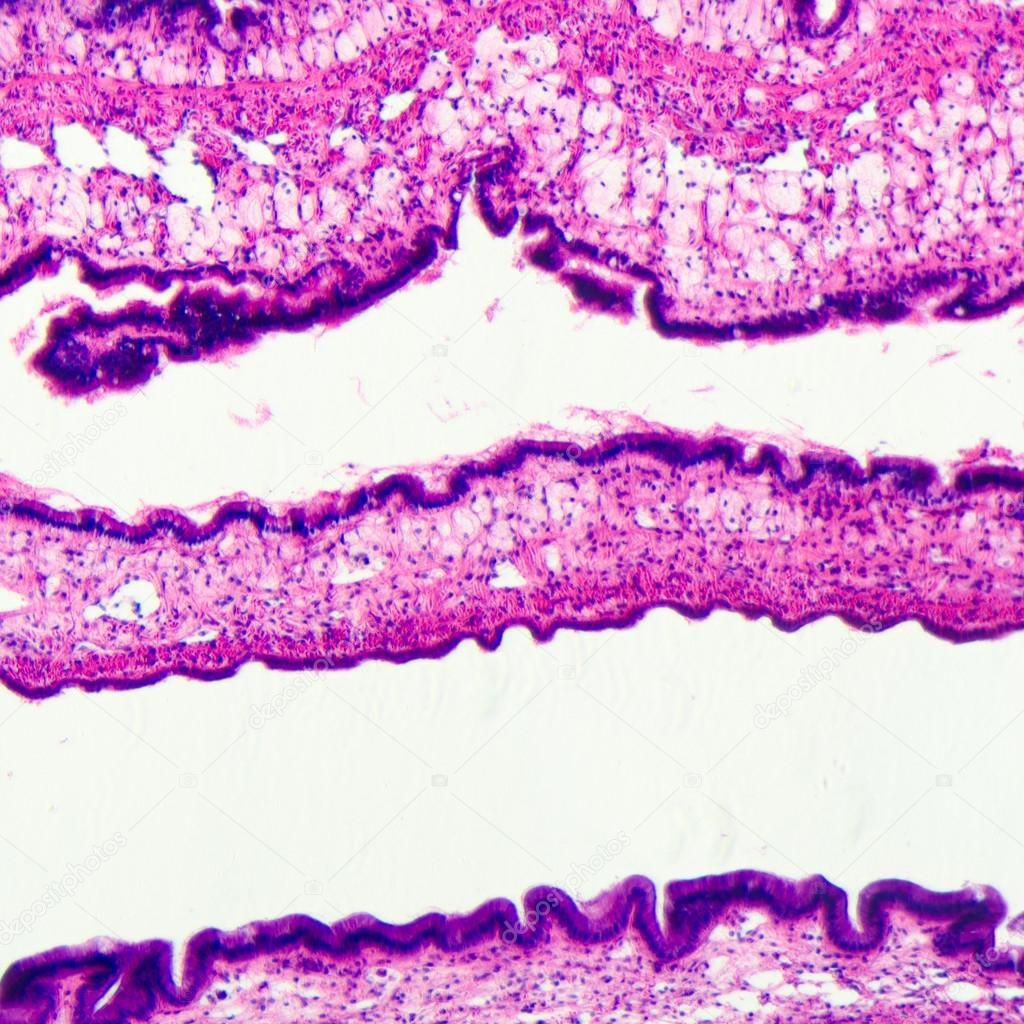Micrograph of medical science cilliated epithelium tissue cell — Stock Photo #17973959