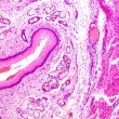 Stratified squamous epithelium - Zdjęcie stockowe