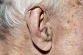 Senior ear — Stock Photo