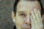 Man covering left eye — Stock Photo