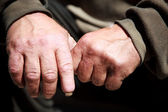 Homeless hands — Stock Photo